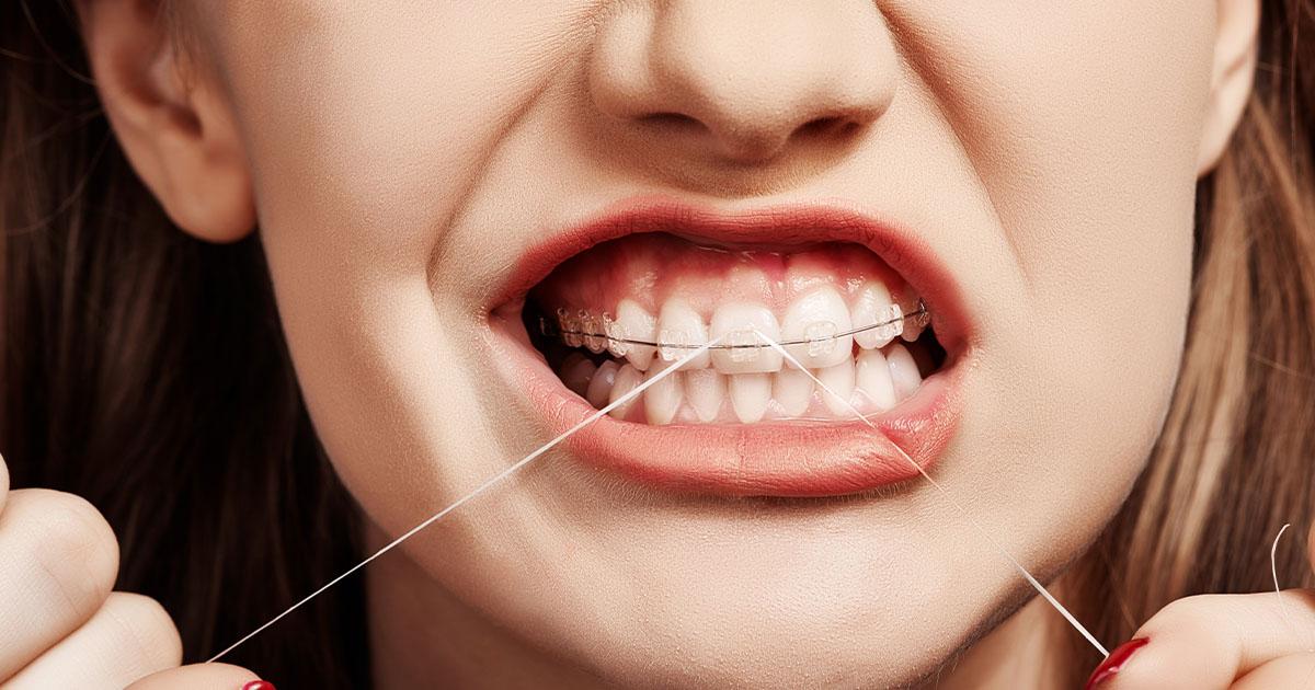 Reinigung Zahnspange mit Zahnseide